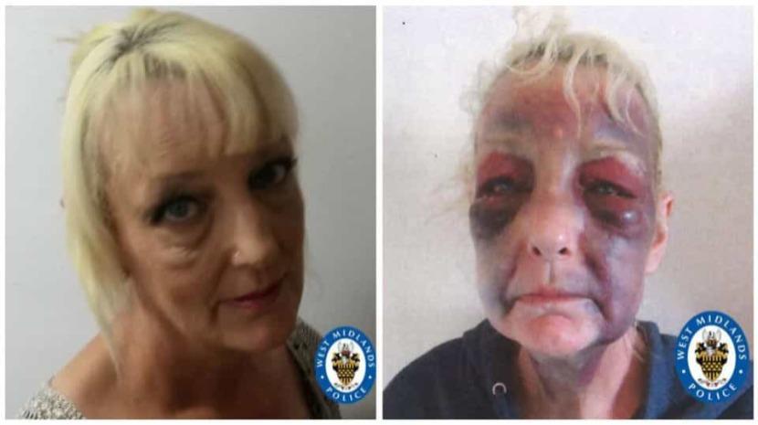 Vítima de violência doméstica publica foto chocante após agressões brutais