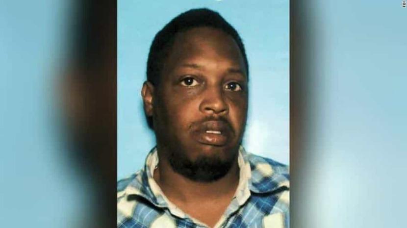 Insólito: Mulher só descobriu que foi baleada na cabeça pelo namorado um ano depois
